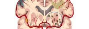 脳小血管病(小血管性認知症)について