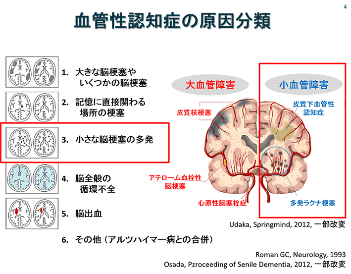 血管性認知症の分類