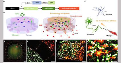 神経変性と神経炎症を再現したアルツハイマー病の3D培養モデル