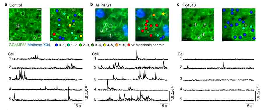 タウとアミロイドと神経活動-1