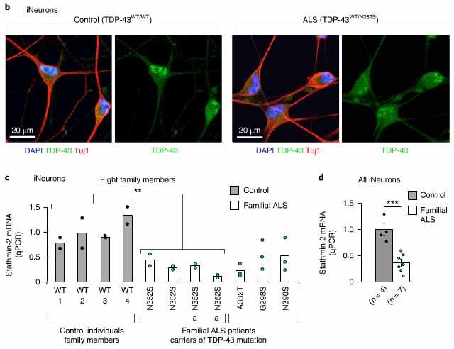ALS患者由来神経細胞