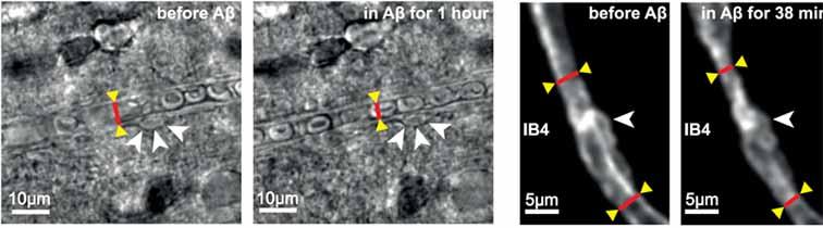 Fig1, ペリサイトと血管収縮