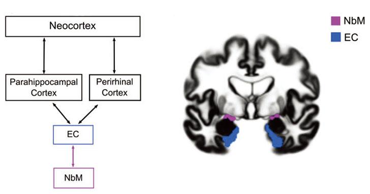 前脳基底部の変性が先、かも