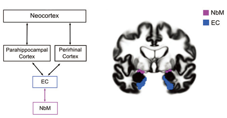 Brain-2020-NbM-Fig