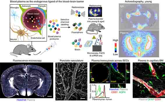 マウス血液脳関門(blood-brain barrier, BBB)