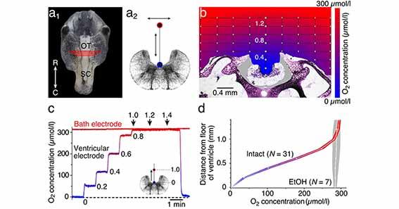 脳の酸素消費量