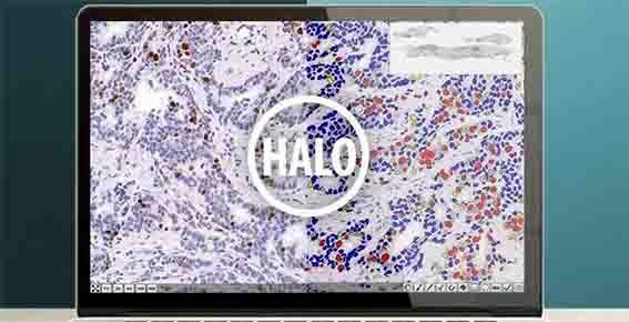 【HALO】バーチャルスライド解析の備忘録