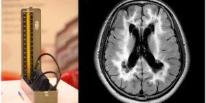 中年期の拡張期高血圧は晩年の脳白質障害に影響する