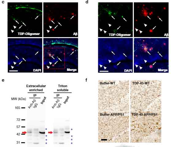TDP43 interacts with abeta inhibits fibrillization and worsens pathology in a model of AD