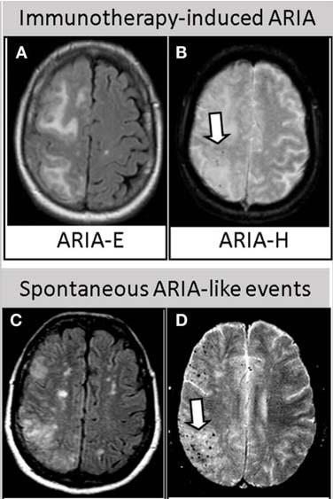 APOE-ARIA-MRI