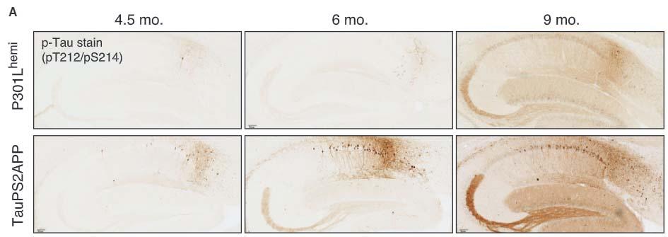 Neuron-2021-TREM2andAD-1