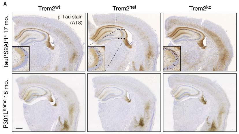 Neuron-2021-TREM2andAD-3
