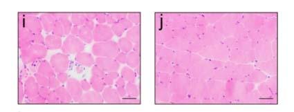 Spreading of TDP‑43 pathology-img2
