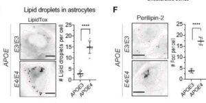 APOE4を持つアストロサイト&酵母では脂質代謝異常が起こっている
