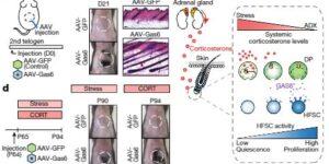 ストレス性脱毛のメカニズムにGAS6が関与
