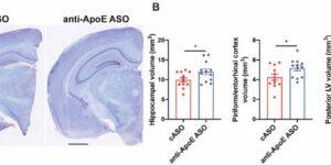 アンチセンスオリゴでAPOE4を減らすとタウマウスの神経障害が改善する
