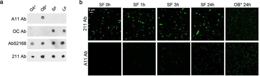 α-syn フィブリルから放出された α-syn オリゴマーが神経細胞障害をおこす