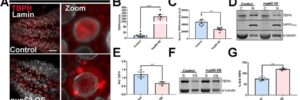 外傷による核細胞質間輸送の障害がTDP-43病理を引き起こす