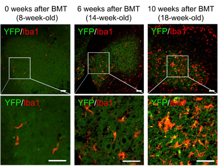 GLT1を強制発現した骨髄細胞を移植すると、SOD1変異マウスの病態進行を抑制できる