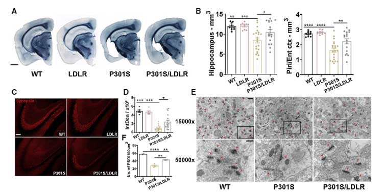 LDL受容体を過剰発現すると、APOE の発現を抑えてタウ介在性神経変性が改善する