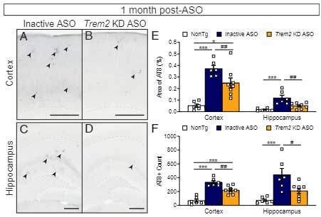 Trem2 KD ASO 投与でリン酸化タウの量が減少