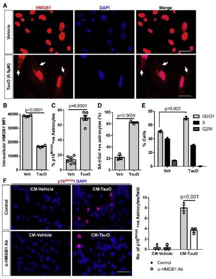 cell-rep-2021-tau-HMGB1-senescence-2