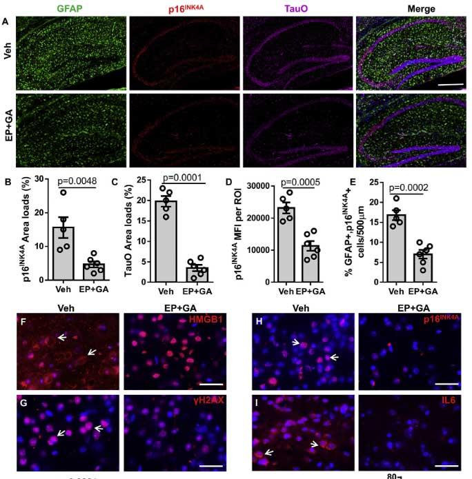cell-rep-2021-tau-HMGB1-senescence-5