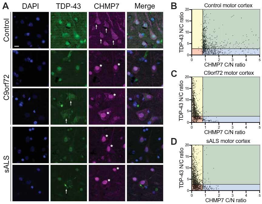 CHAMP7の核内集積がNPC異常のきっかけになり、ALS特有のTDP-43異所性凝集を誘導する