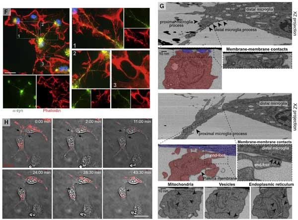 microglia-asyn-nanotube-3
