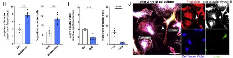 microglia-asyn-nanotube-9
